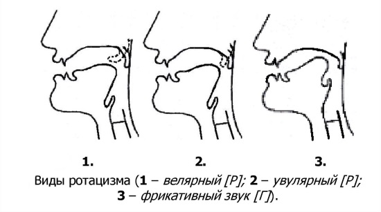 Лечение ротацизма в Санкт-Петербурге