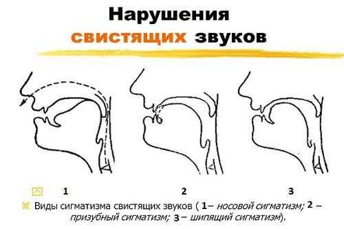 Лечение сигматизма в Санкт-Петербурге